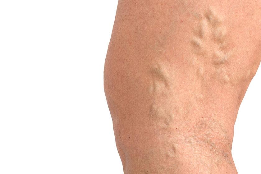Qué causa dolor muscular después de hacer ejercicio
