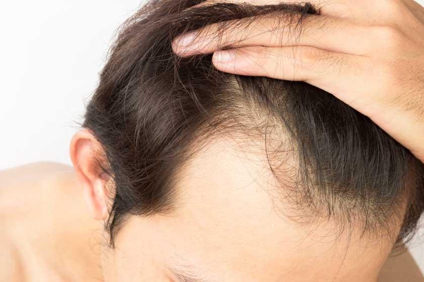 Mesoterapia Para Alopecia Dermaten Clinicas